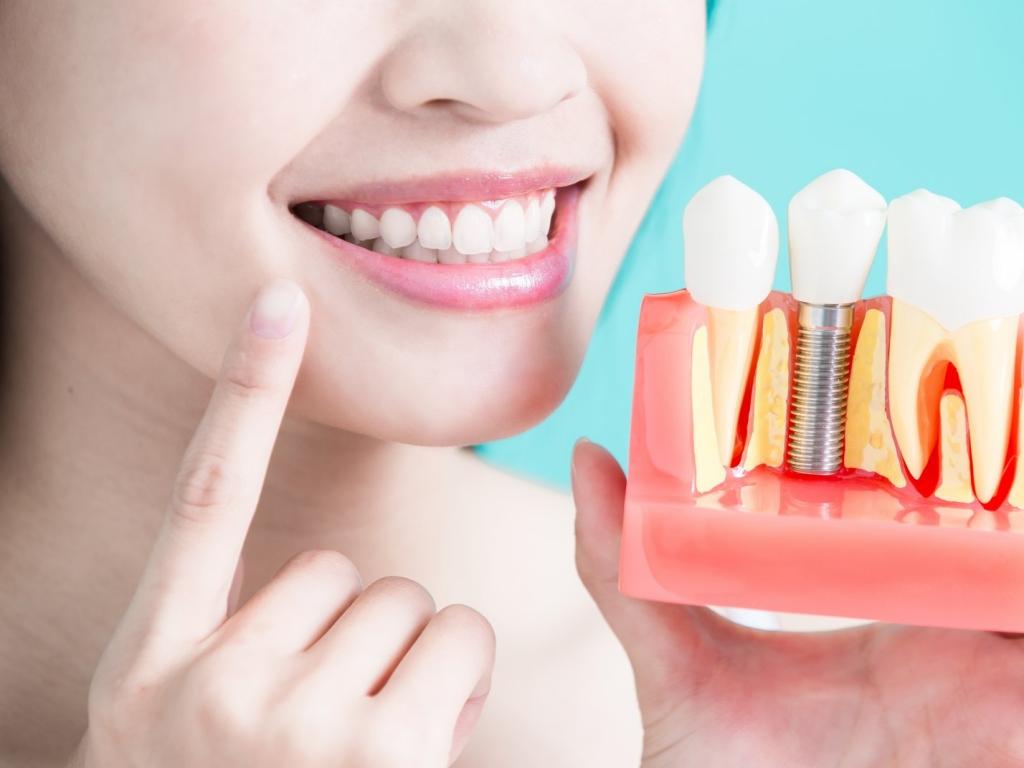 Имплантация зубов 14900