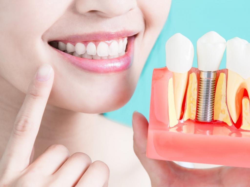 Имплантация зубов Всего 13900р.