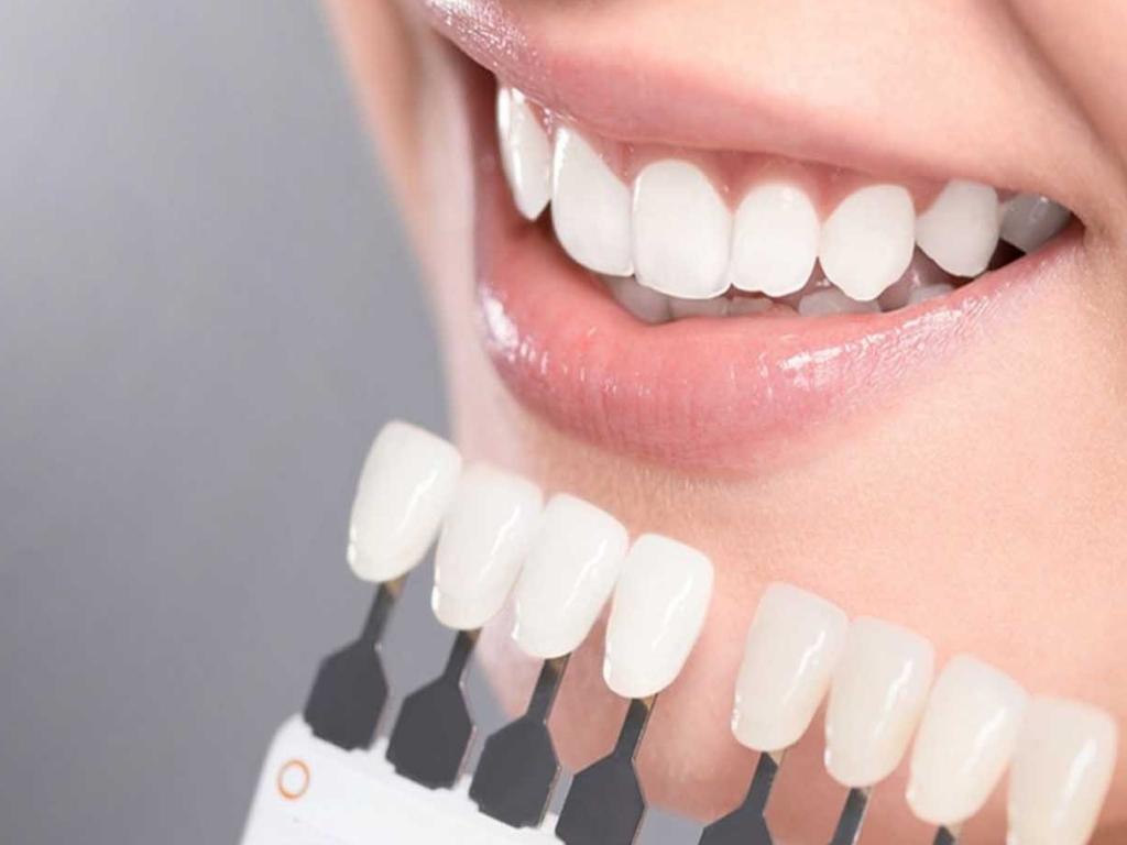 Скидка на отбеливание зубов 8000р